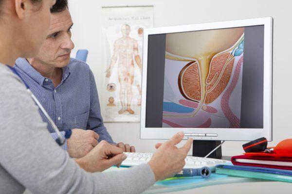 Prostata: obserwuj i reaguj